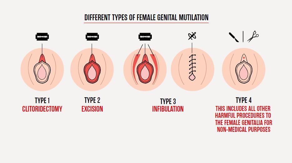 Beschnittene vagina bilder